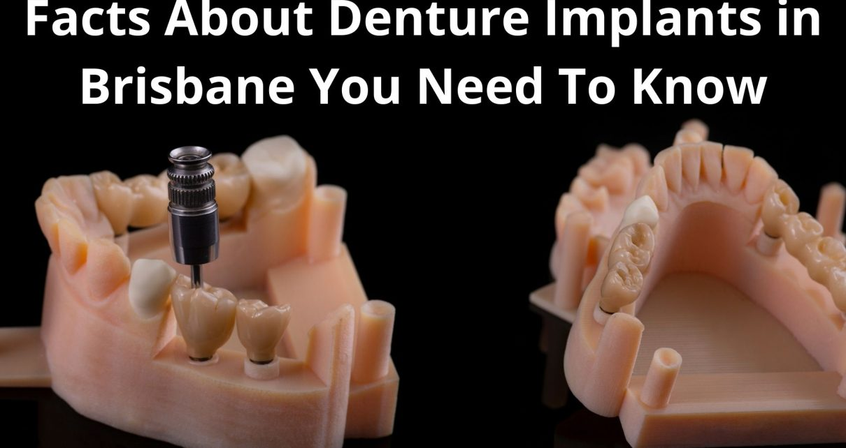 Facts About Denture Implants in Brisbane You Need To Know Before Getting One